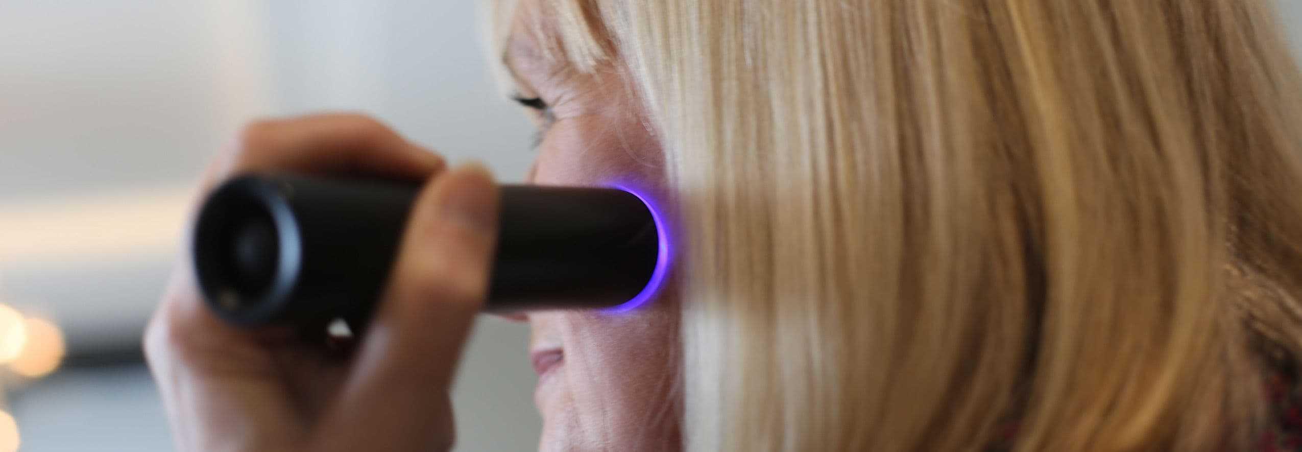 Emma uses laser on skin