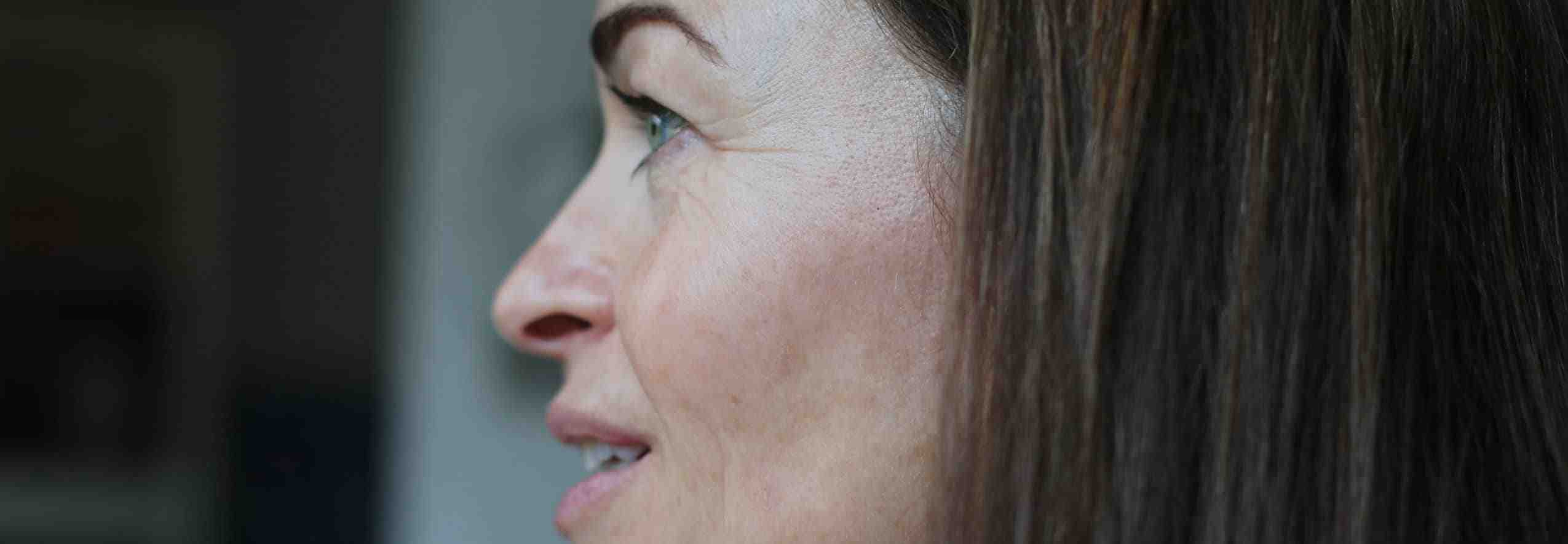 Lady face with brown age spots