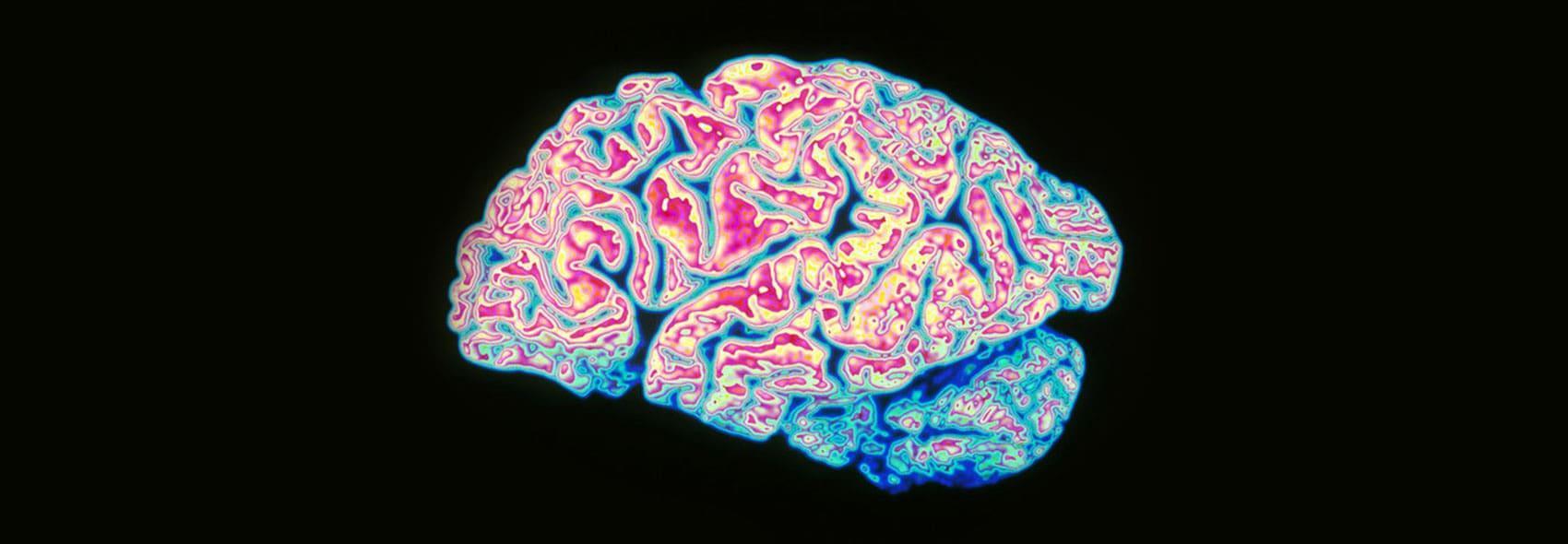 Brain health supplements LYMA 2