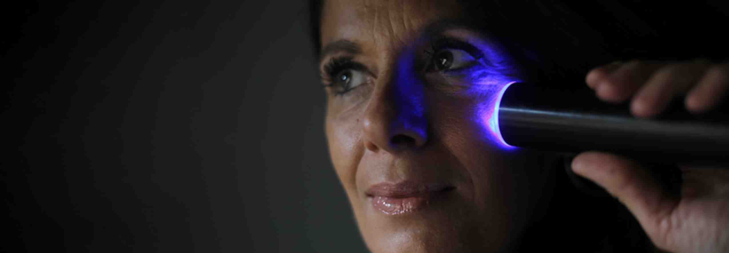 LYMA laser treats sagging eyelids