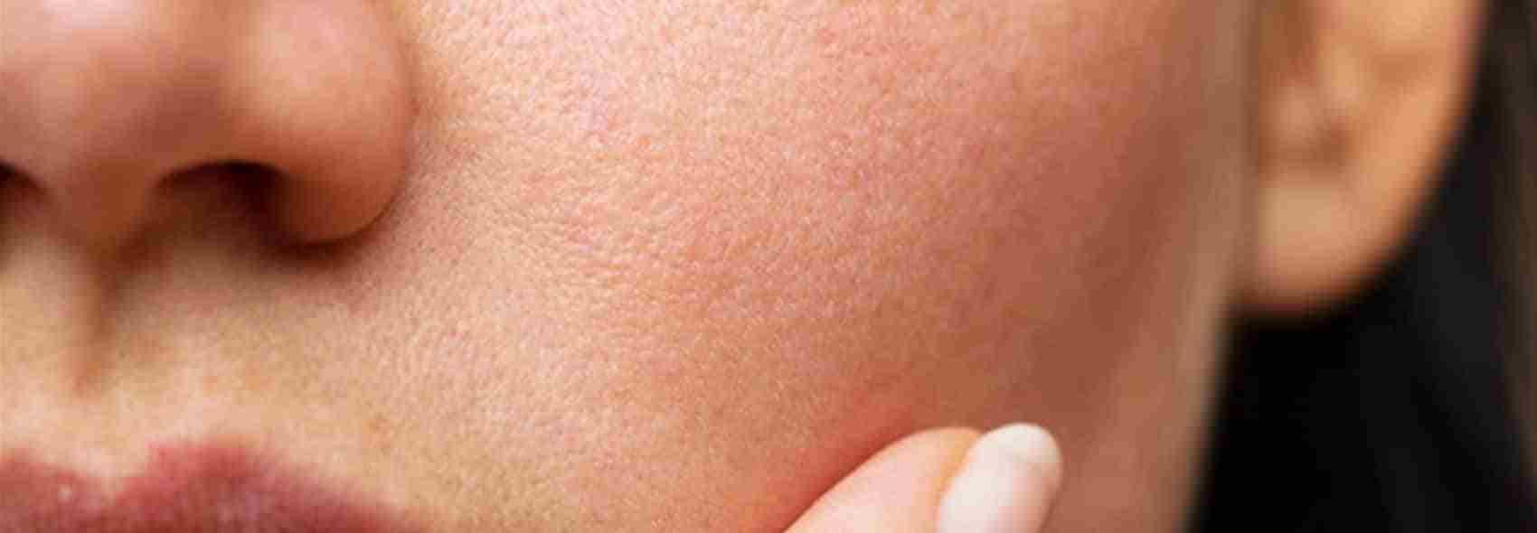 Pigmentation face skin